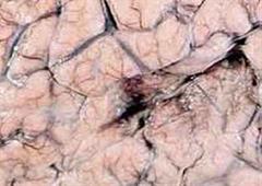 Bei Meningitis wird die Hirnhaut entzündet.