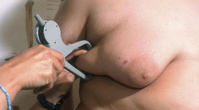 Fettleibigkeit zehrt an den globalen Ressourcen.