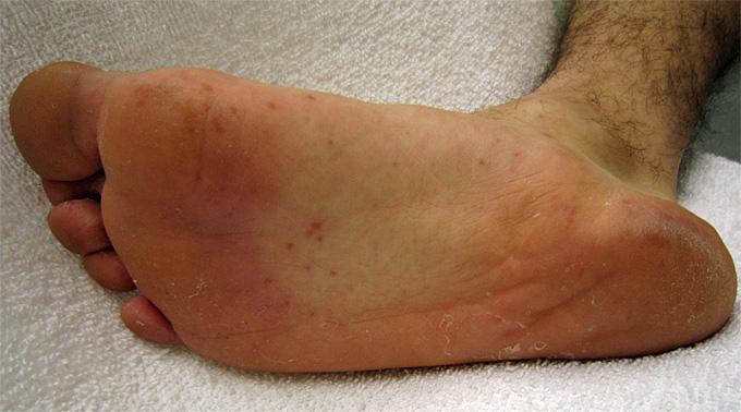 Raised Skin Bump: 31 Causes, Photos, & Treatments
